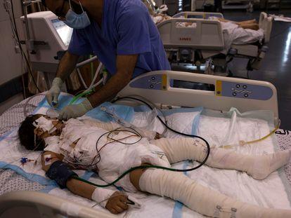 Un médico trata a una niña gravemente herida, el pasado día 13 en la UCI de un hospital de la ciudad de Gaza.