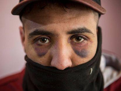 Los migrantes que intentan cruzar la frontera entre Serbia y Croacia son constantemente atacados por la policía