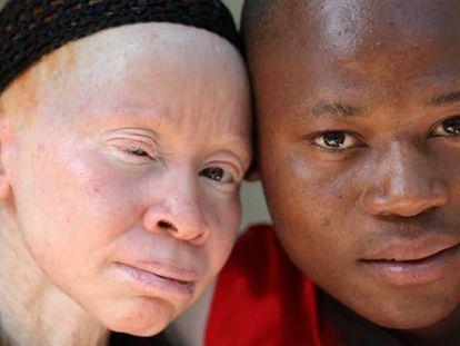 A la izquierda, una persona albina.