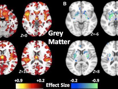 Patrones de volúmenes de materia gris en  dos subtipos de esquizofrenia.