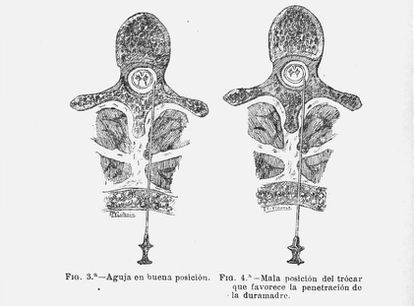 Image of the drawing of the article 'Metameric anesthesia' where Fidel Pagés describes how to put the needle.