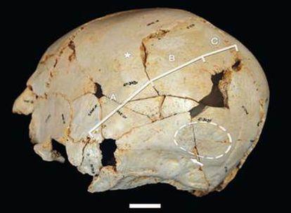 Reconstrucción del cráneo asimétrico de <i>Benjamina</i>.