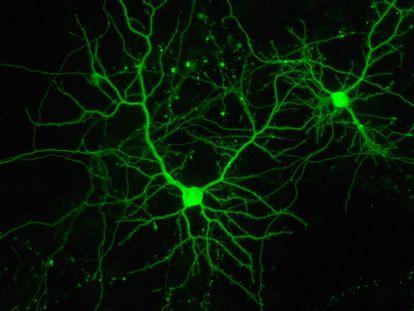 Neuronas en cultivo.