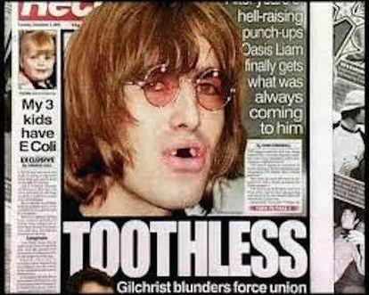 Un Liam Gallagher sin dientes copó las páginas de muchos diarios británicos tras su pelea en el bar del hotel Bayerischer Hof de Múnich en 2002.