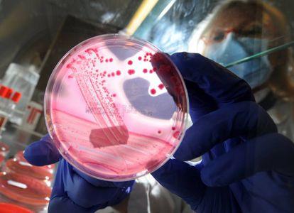 Un cultivo de la bacteria E. coli.