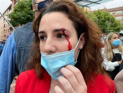 La diputada de Vox Rocío de Meer ha resultado herida  al recibir una pedrada antes del mitin del partido en Sestao (Vizcaya)  VOX 26/06/2020