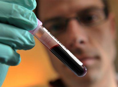 Un técnico de un laboratorio antidopaje, con una muestra de sangre, durante un análisis.