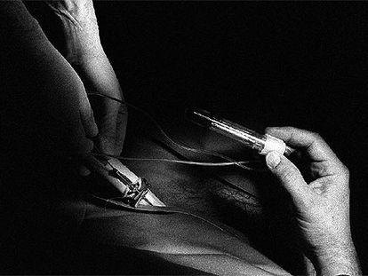 Punción para la  extracción de óvulos en un centro de reproducción asistida.