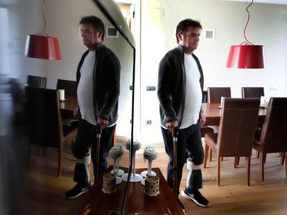 Jordi Alba, que padece secuelas de la covid, en su casa de Llinars del Vallès (Barcelona), este marzo.