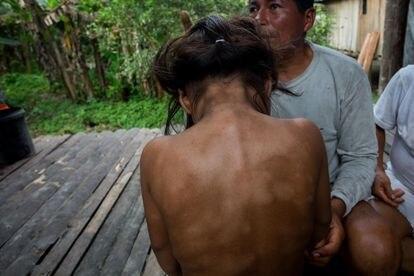 En la comuna de Sani Isla en la provincia de Orellana, Damary Mayerli Grefa muestra los problemas que tiene en su piel debido al contacto con el agua contaminada con crudo del derrame del pasado mes de abril.