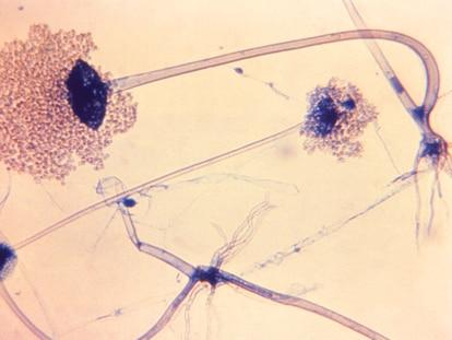 El hongo Rhizopus arrhizus, causante del 70% de las infecciones de mucormicosis conocidas como hongo negro.