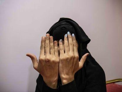 Museiba, de 20 años y profesora de Química, muestra la mano derecha que usa para fregar y la izquierda que se pinta y cubre con un guante para evitar oprobios.