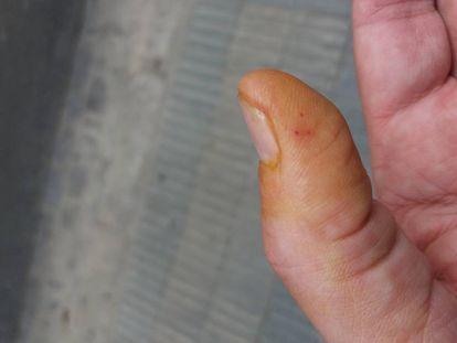El dedo con la picadura, tumefacto.