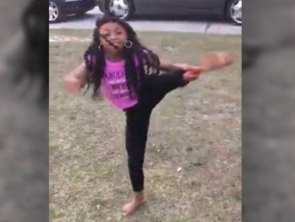 Una niña practica gimnasia rítmica con una prótesis en la pierna.