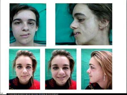 Células madre para reconstruir deformidades faciales