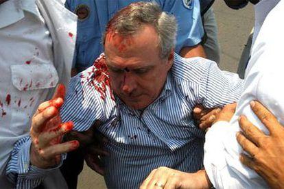Enrique Bolaños Abaunza, hijo del presidente de Nicaragua, tras ser agredido el martes por los manifestantes.