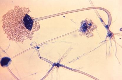 Rhizopus arrhizus, causante del 70% de las infecciones de mucormicosis.