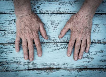 Las manchas de las manos, testigos principales de una vida de exposición al sol.