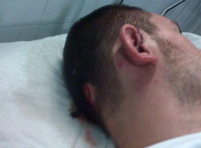 Uno de los futbolistas víctimas de la violencia racista, en el hospital.