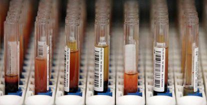 Muestras de sangre esperando para ser analizadas en Stockport, Reino Unido R