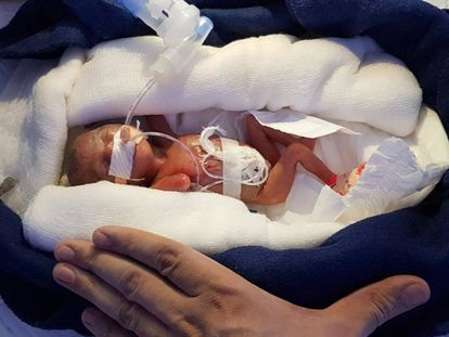 Manushi, la 'bebé milagro' india.