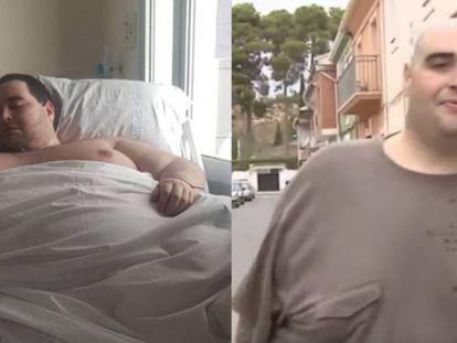 El antes y el después de Teo Rodríguez.