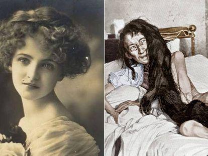 Blanche Monnier, en su juventud, y tras ser liberada de un secuestro de 25 años (imagen de época, coloreada).