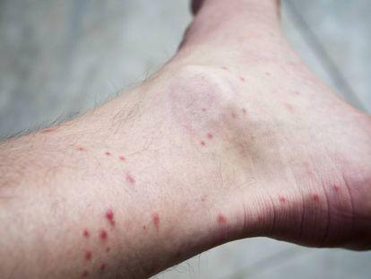 Picaduras de mosquito en el tobillo de un hombre.