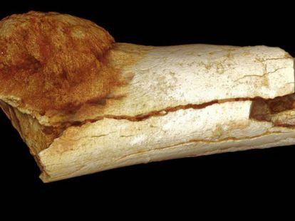 La representación volumétrica de una imagen de la morfología externa del hueso del pie muestra el grado de expansión del cáncer óseo primario más allá de la superficie del hueso.