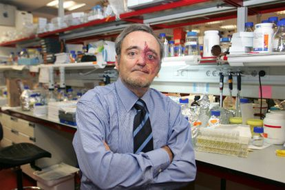El director del Centro Nacional de Investigaciones Oncológicas, Mariano Barbacid.