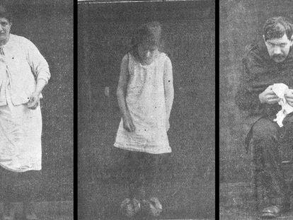 Varios pacientes de encefalitis letárgica, en unas imágenes tomadas por la neuróloga Gabrielle Lévy para su tesis de 1922 y cedidas por el profesor Peter Koehler.