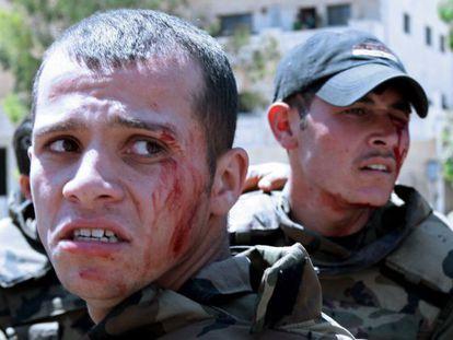 Dos de los soldados sirios heridos en una explosión cuando escoltaban un convoy de la ONU.