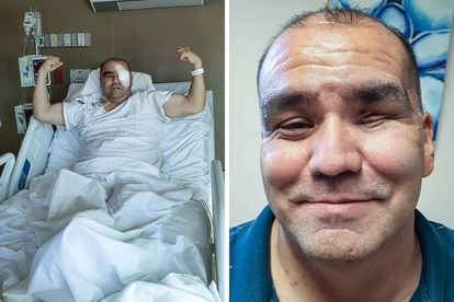 Jaime Díaz de León, 48, was diagnosed with black fungus in the State of Chihuahua.