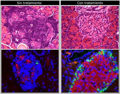 Fotografías microscópicas del páncreas en un animal de prueba. Arriba: el fármaco reduce la infiltración de células inmunes (puntos morados más oscuros). Abajo: el fármaco aumenta la producción de insulina (en rojo).