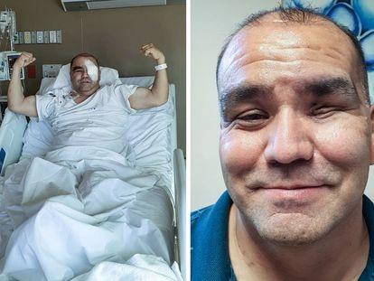 Jaime Díaz de León, de 48 años, fue diagnosticado por hongo negro en el Estado de Chihuahua.