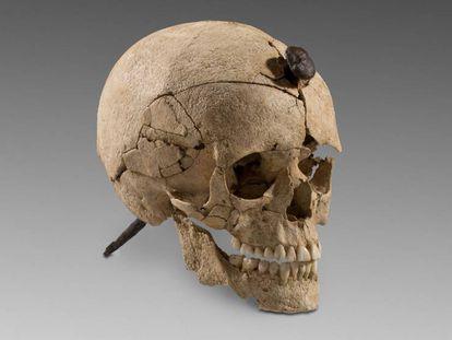 Cráneo de guerrero íbero atravesado por un clavo de hierro.
