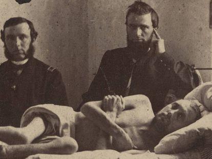 El cabo Calvin Bates, en el hospital tras salir del campo de prisioneros confederado de Andersonville. Atención, la foto ampliada puede herir su sensibilidad.