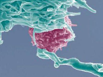 Las células T (en rosa) serán modificadas para atacar las células del cáncer mediante CRISPR.