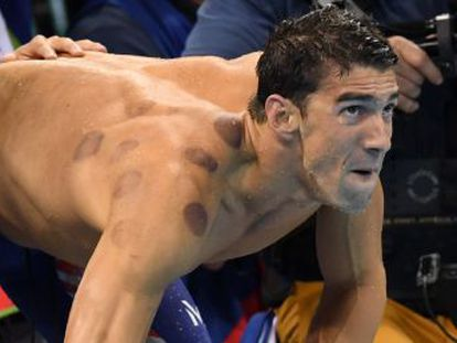 El nadador luce unas marcas moradas producto de una terapia llamada  cupping