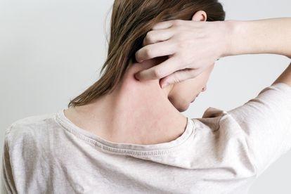 Una mujer que sufre psoriasis se rasca la nuca.