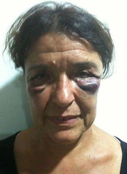 Carmen Roger, una de las activistas agredidas por la policía marroquí, según denuncian desde la organización