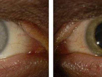 Antes de contraer el ébola, los ojos de Crozier eran azules. Después de haberse recuperado de la enfermedad, su ojo izquierdo se volvió verde.