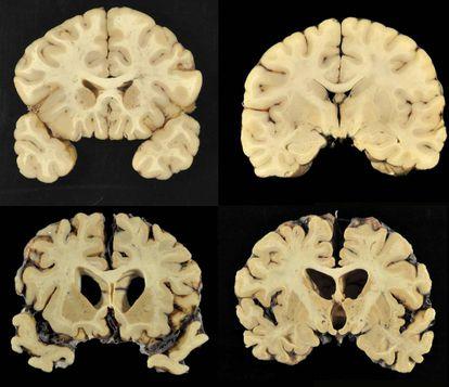 Un cerebro normal, arriba, y uno con CTE nivel 4, en una imagen del estudio.