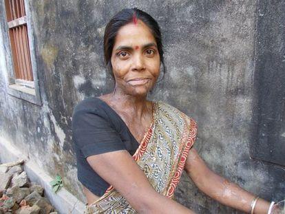 Moyna Pramanik fue atacada con ácido por su marido cuando tenía 16 años hace una década.