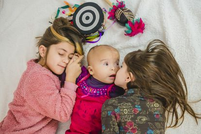 Sayen, de 15 meses, nació con una enfermedad rara.