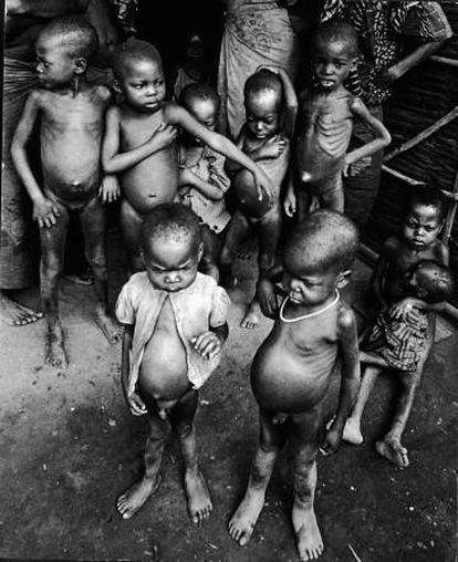 Starving children during the Biafra war.