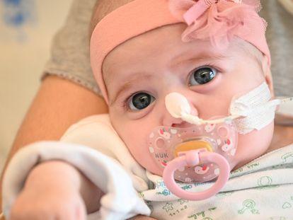Naiara, de dos meses, tras recibir un trasplante de corazón.