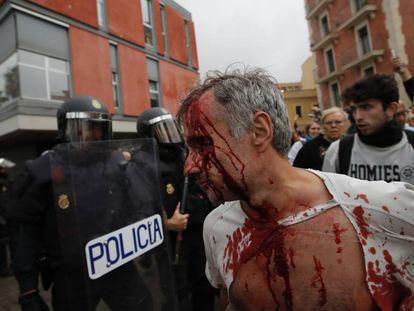 Un hombre herido en la escuela Mediterrània de Barcelona, durante la jornada del referéndum ilegal del 1-O.