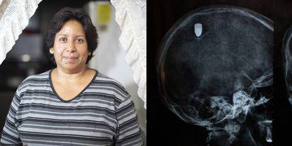 A la izquierda, Lourdes Gutiérrez. A la derecha, la radiografía del balazo.