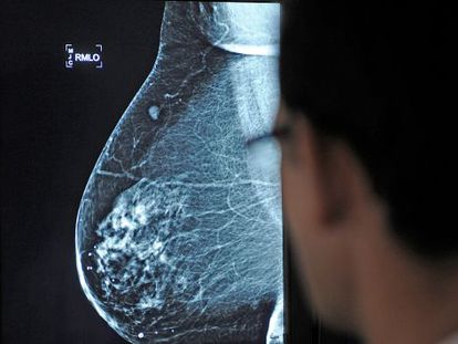Una mamografía